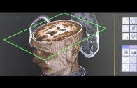 Leben mit Tinnitus – Wie hilft die Forschung?
