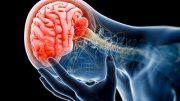 Charité: Die Hauptstadtklinik – Einsatz für die Neurochirurgie
