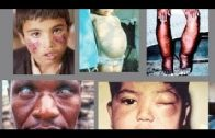 [New] HD – BBC Sience Documentary 2016    Parasitic Diseases In Humans – National geograph